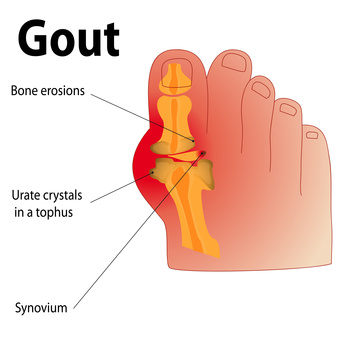 gout symptoms foot arch for decreasing uric acid joint increased uric acid signs