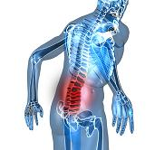 low back pain causes