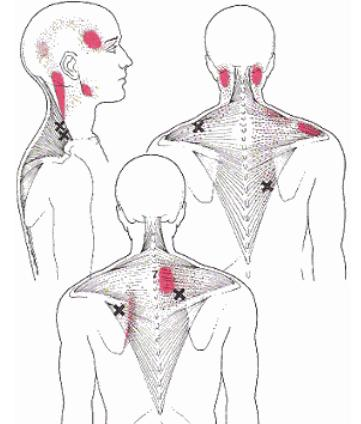 neck muscles image