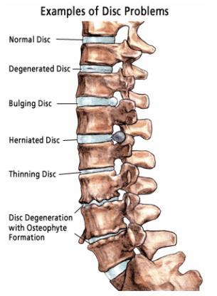 examples of disc problems